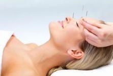 Vyzkoušeli jste už akupunkturu?